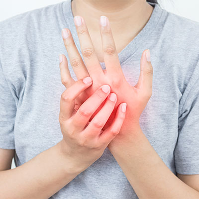 Carpal Tunnel Syndrome Treatment in Santa Barbara