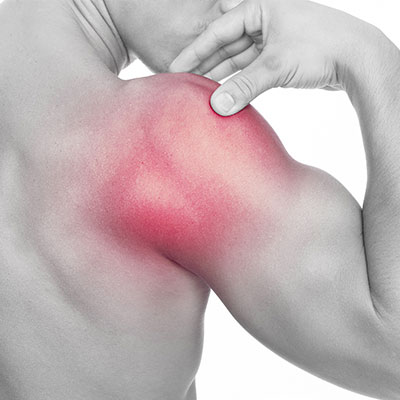 Frozen Shoulder Treatment in Santa Barbara