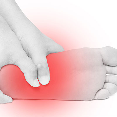 Plantar Fasciitis Treatment in Santa Barbara